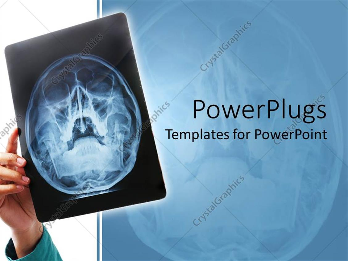 powerpoint template hand holding up xray scan of human