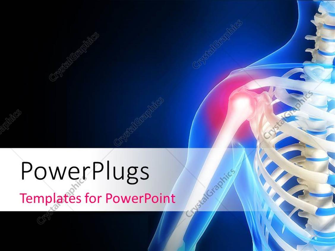 Powerpoint template human anatomy showing pain in shoulder with powerpoint template displaying human anatomy showing pain in shoulder with black and blue color toneelgroepblik Choice Image