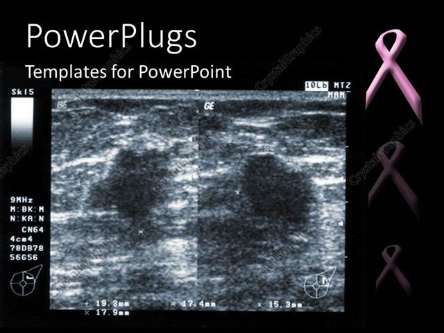 Powerpoint template ultrasound depiction of breast tumor with powerpoint template displaying ultrasound depiction of breast tumor with breast fighting pink ribbon toneelgroepblik Images