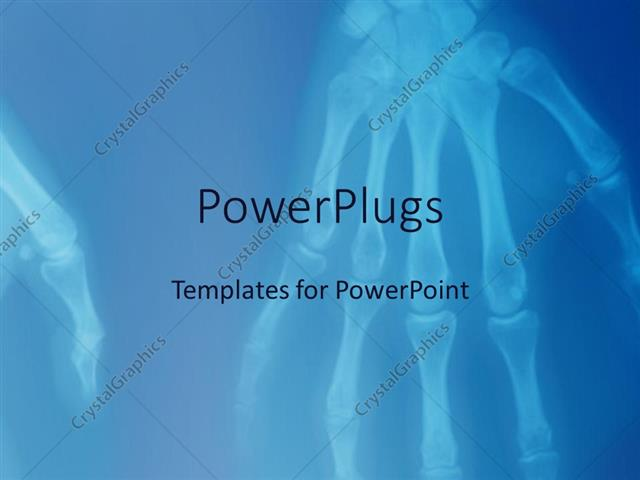 powerpoint template xray of human hands showing skeleton